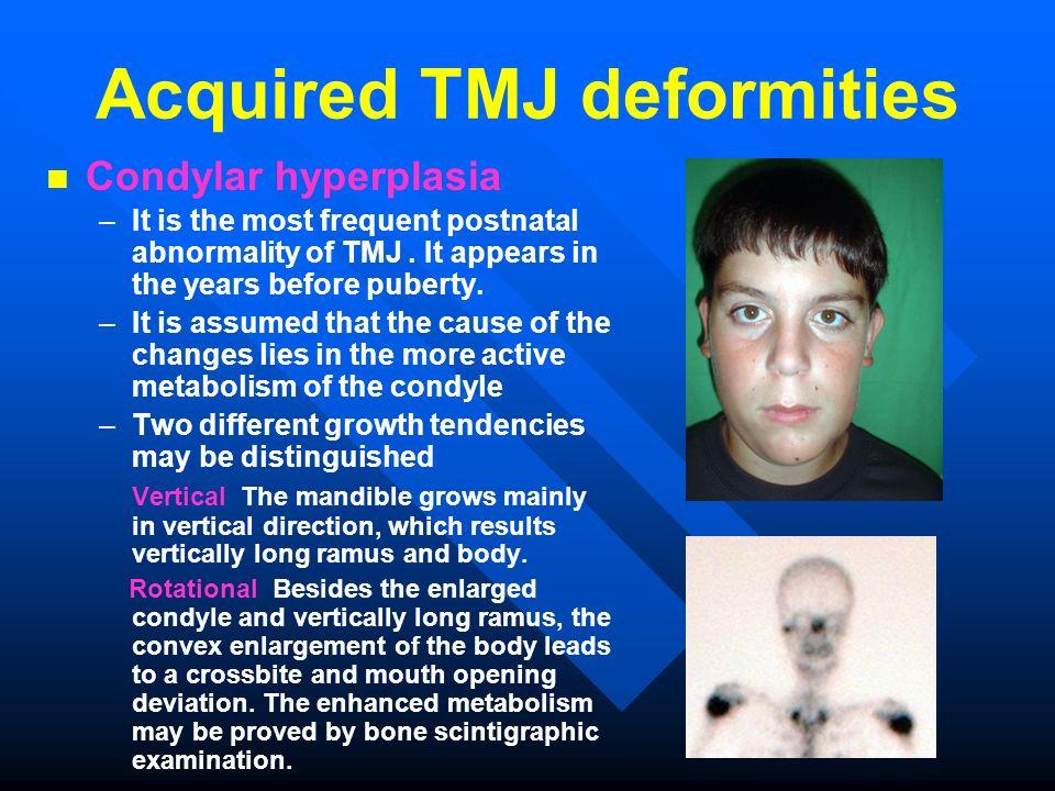 Acquired TMJ deformities