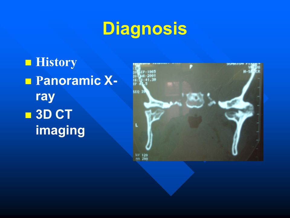 Diagnosis History Panoramic X-ray 3D CT imaging