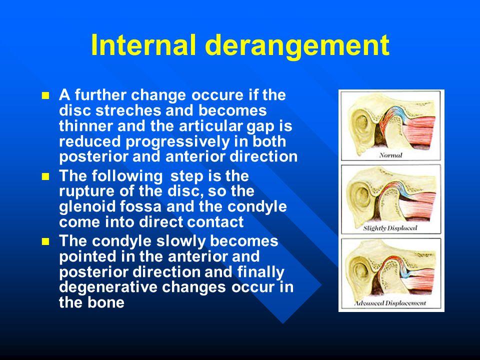 Internal derangement