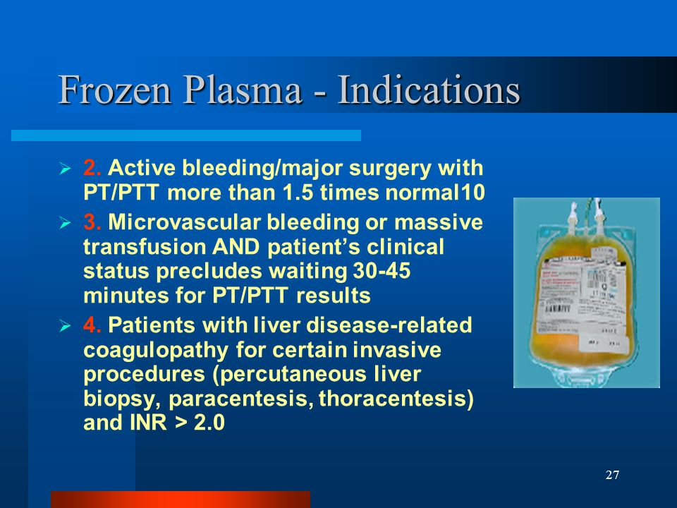 Frozen Plasma - Indications