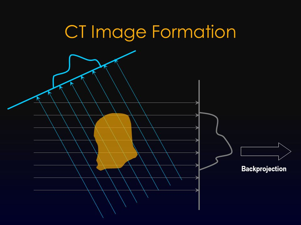 CT Image Formation Backprojection
