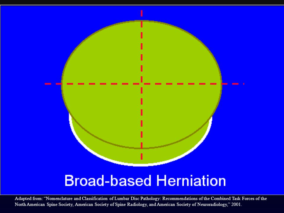 By convention, a broad-based herniation involves between 25% and 50% (90-180) of the disc circumference.