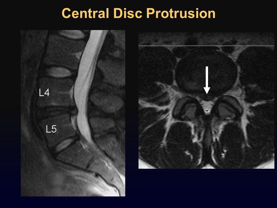 Central Disc Protrusion