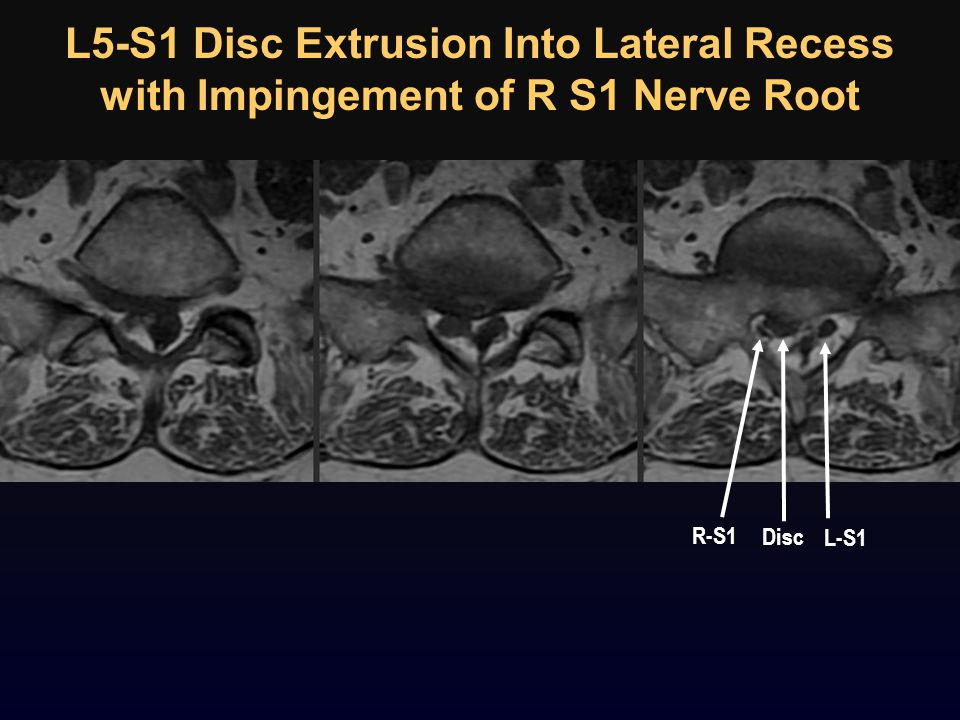 L5-S1 Disc Extrusion Into Lateral Recess with Impingement of R S1 Nerve Root