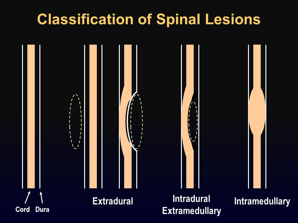 Classification of Spinal Lesions