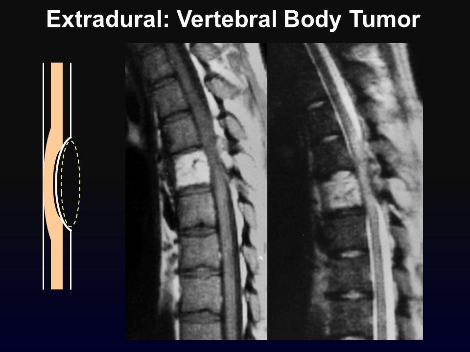 Extradural: Vertebral Body Tumor