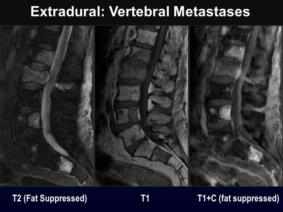 Extradural: Vertebral Metastases