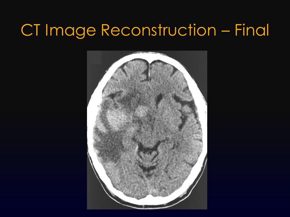 CT Image Reconstruction – Final