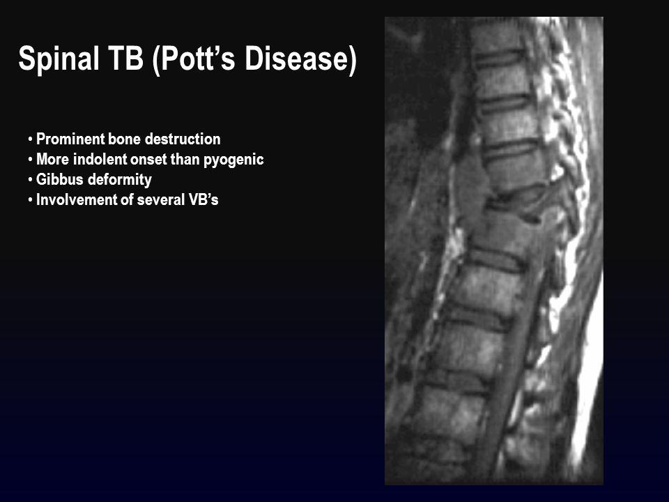 Spinal TB (Pott's Disease)