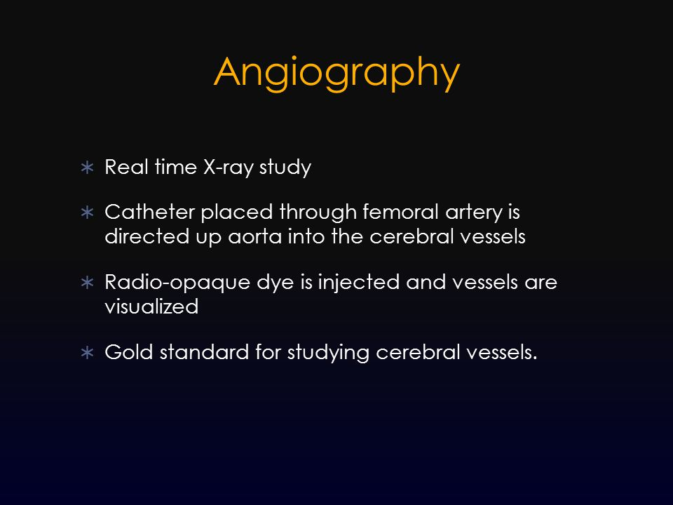 Angiography Real time X-ray study