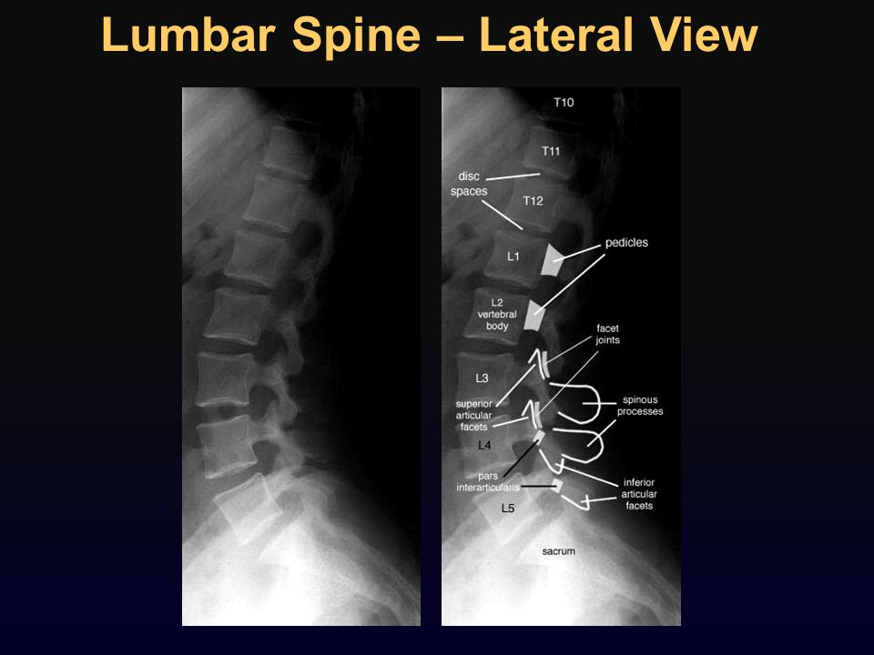 Lumbar Spine – Lateral View