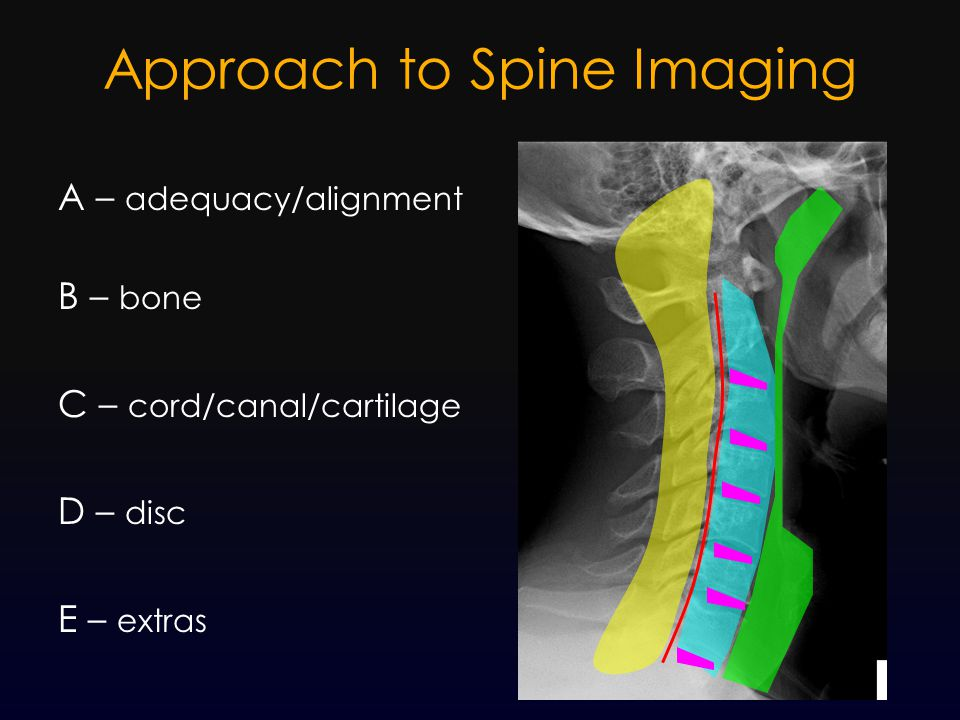 Approach to Spine Imaging