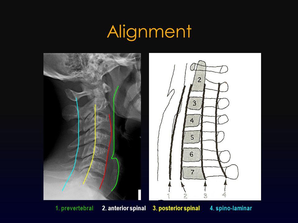 Alignment 1. prevertebral 2. anterior spinal 3. posterior spinal