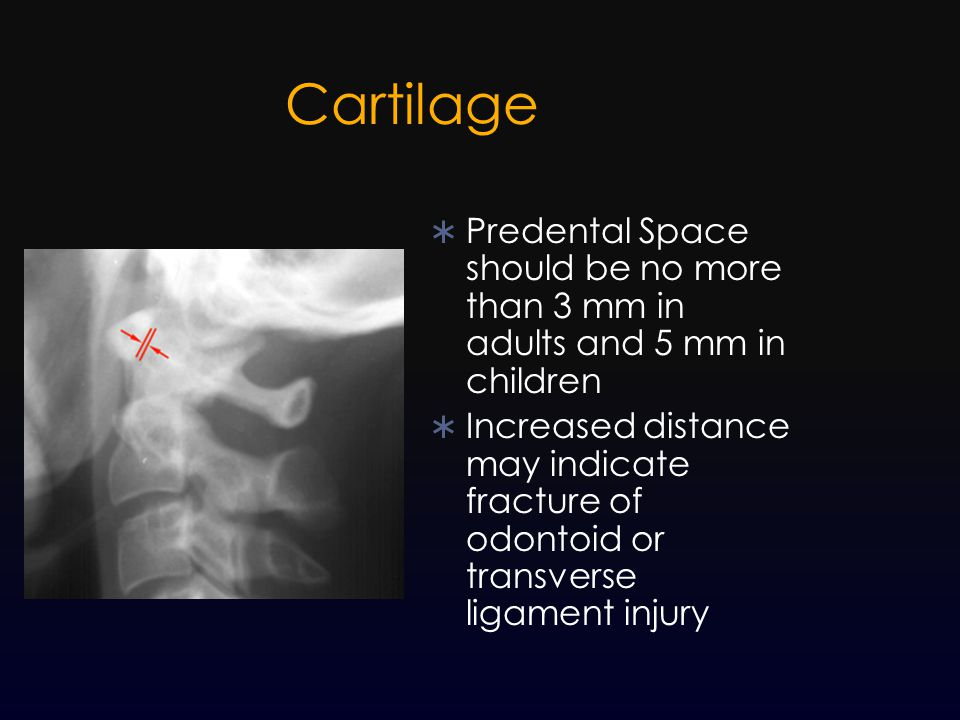 Cartilage Predental Space should be no more than 3 mm in adults and 5 mm in children.