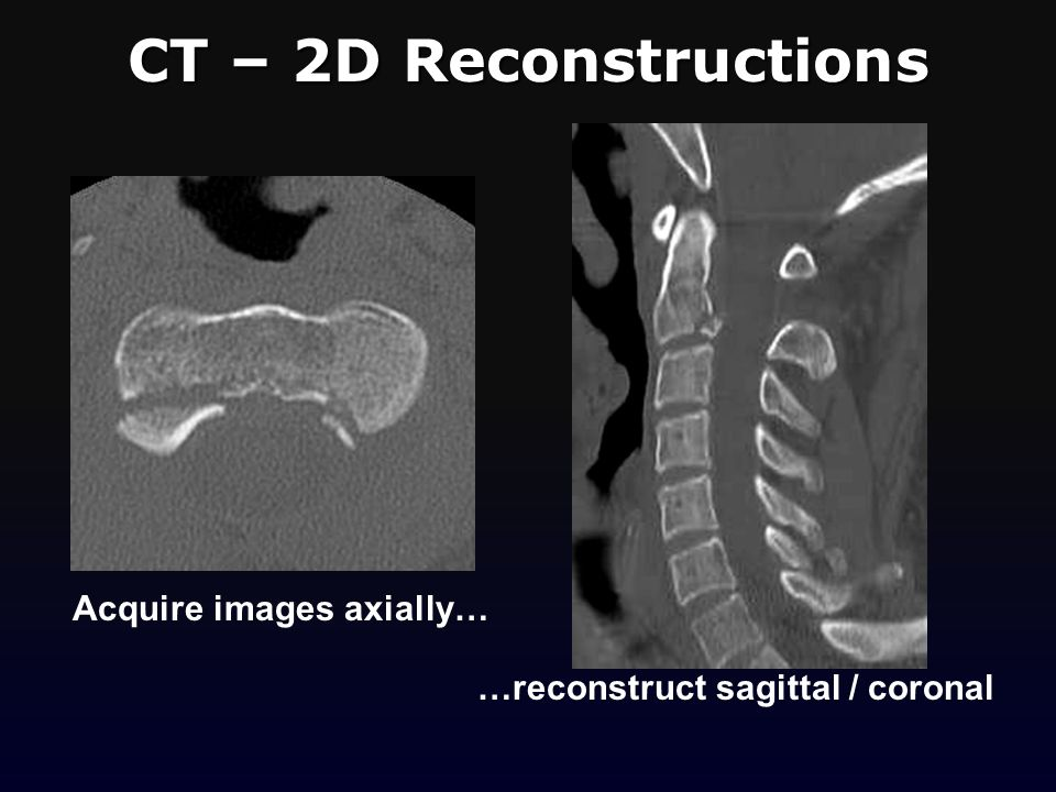 CT – 2D Reconstructions Acquire images axially…