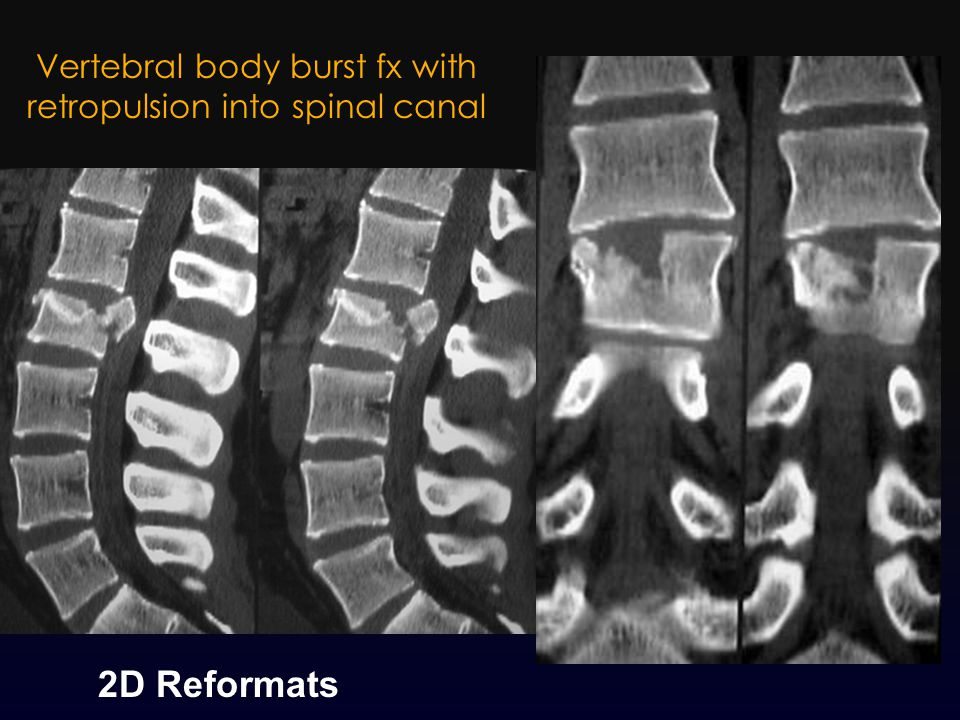 Vertebral body burst fx with retropulsion into spinal canal