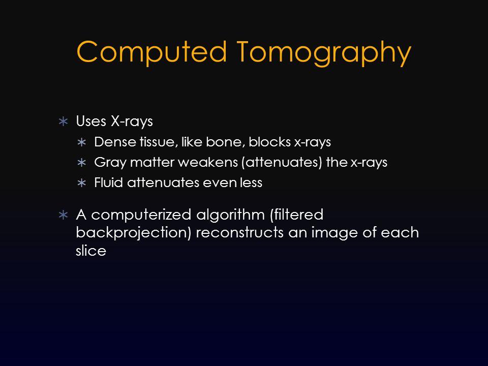 Computed Tomography Uses X-rays
