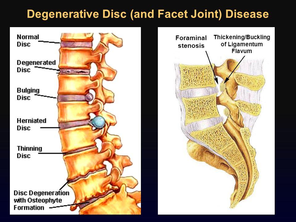 Degenerative Disc (and Facet Joint) Disease