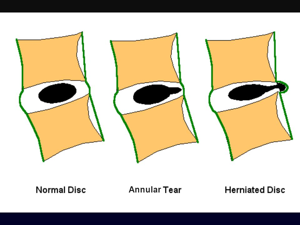 Schematic sagittal anatomical sections showing the differentiating features of an annular tear (radial tear in this case) and a disc herniation. The term tear is used to refer to a localized radial, concentric, or horizontal disruption of the anulus without associated displacement of disc material beyond the limits of the intervertebral disc space. Nuclear material is shown in black, and the annulus (internal and external) corresponds to the white portion of the intervertebral space. The same convention is used in Figures 3, 12, 13, and 14. (Adapted from Milette PC. The proper terminology for reporting lumbar intervertebral disk disorders. AJNR Am J Neurorad 1997;18:1859-66; with permission.)