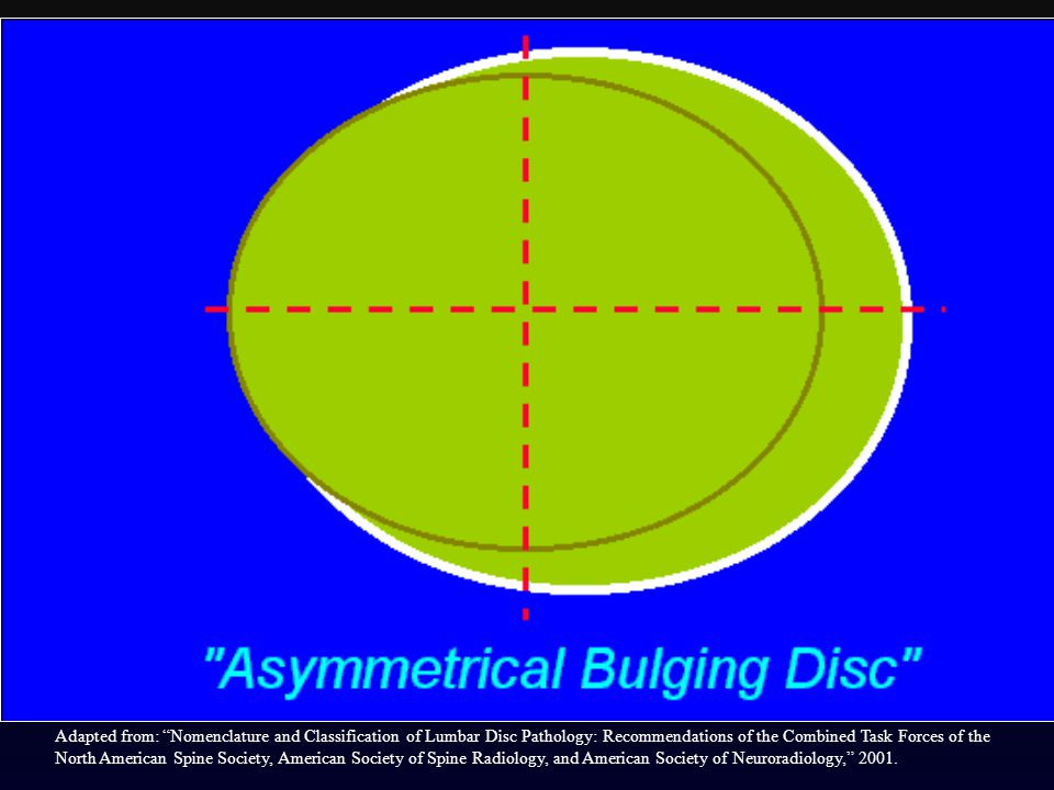 Asymmetrical bulging of the disc margin (50%-100%), such as is found in severe scoliosis, is also not considered a form of herniation.