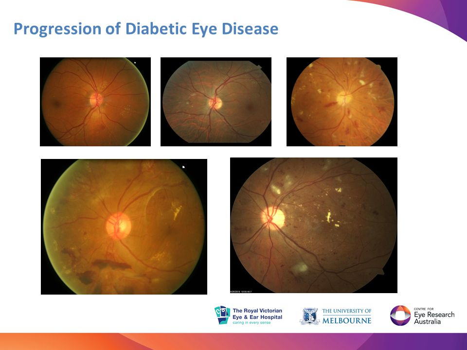 Progression of Diabetic Eye Disease