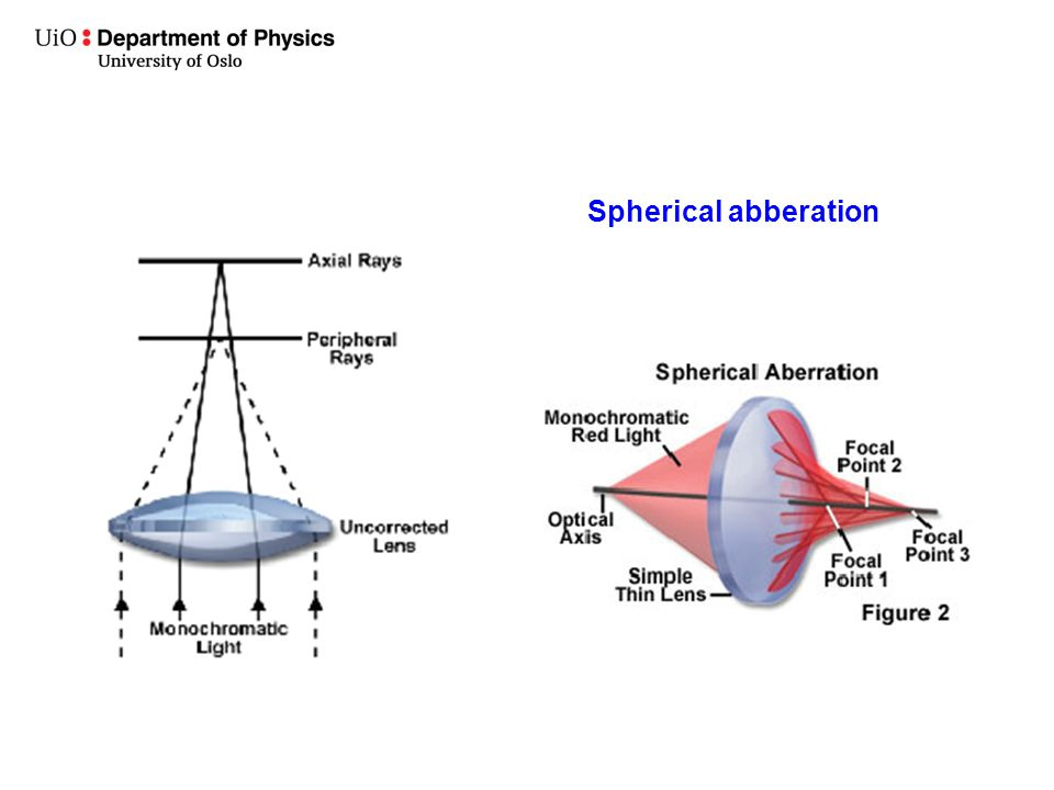 Spherical abberation