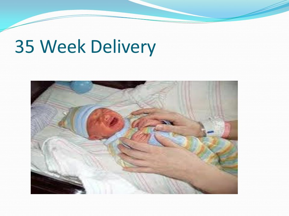 35 Week Delivery