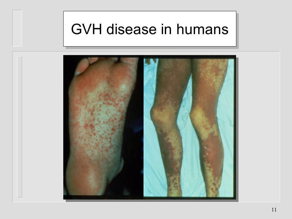 GVH disease in humans