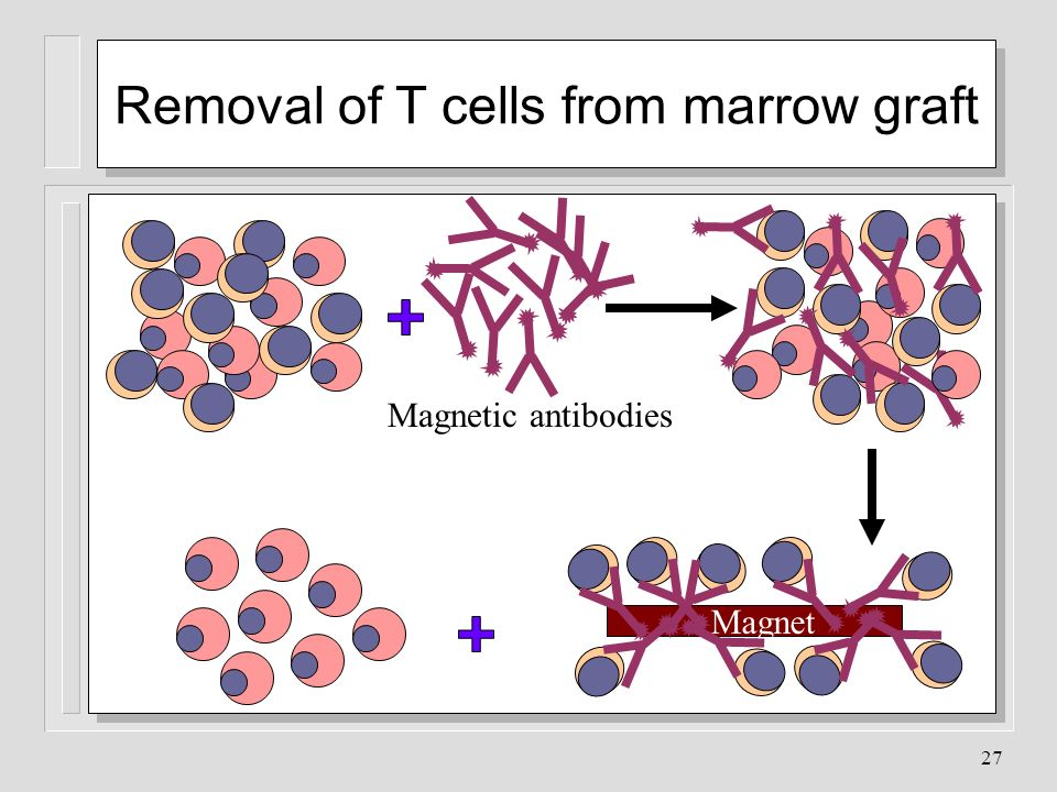 Removal of T cells from marrow graft