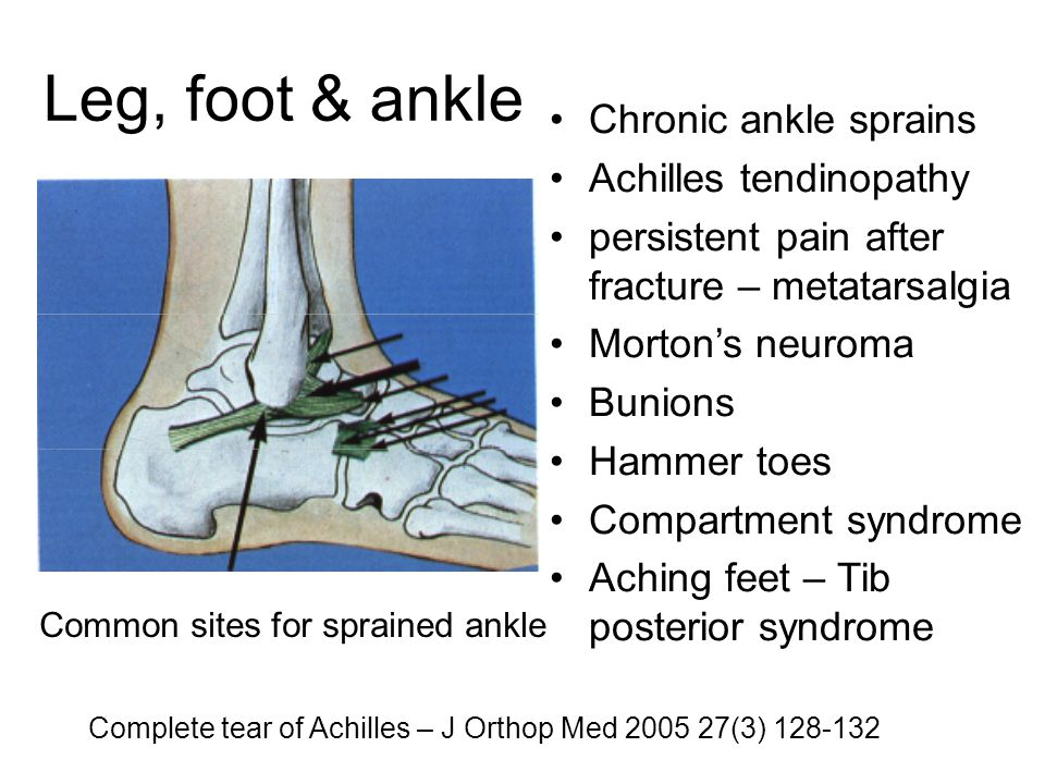 Leg, foot & ankle Chronic ankle sprains Achilles tendinopathy