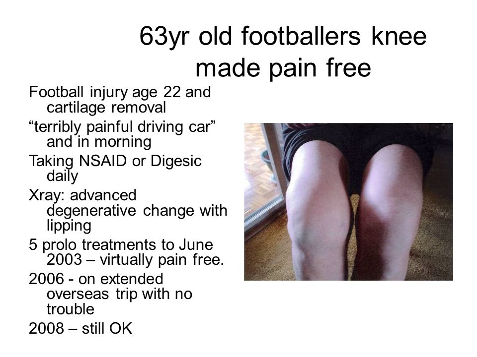 63yr old footballers knee made pain free