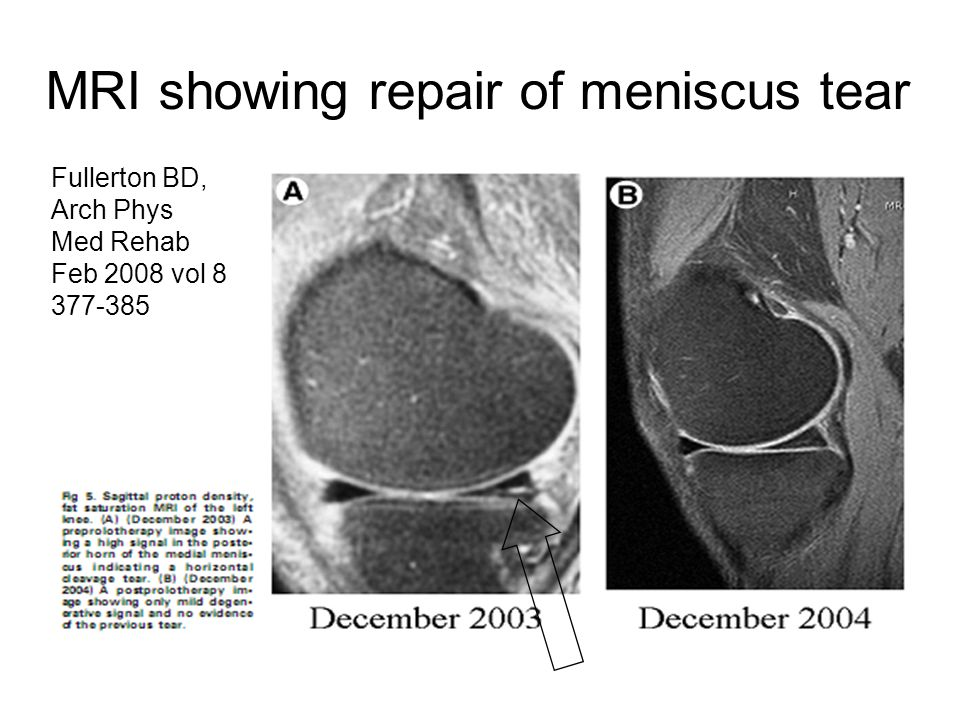 MRI showing repair of meniscus tear