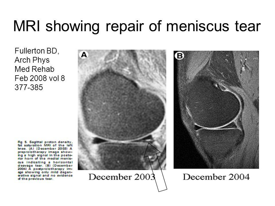 MRI showing repair of meniscus tear