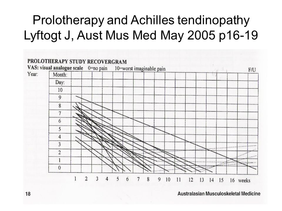 Prolotherapy and Achilles tendinopathy Lyftogt J, Aust Mus Med May 2005 p16-19