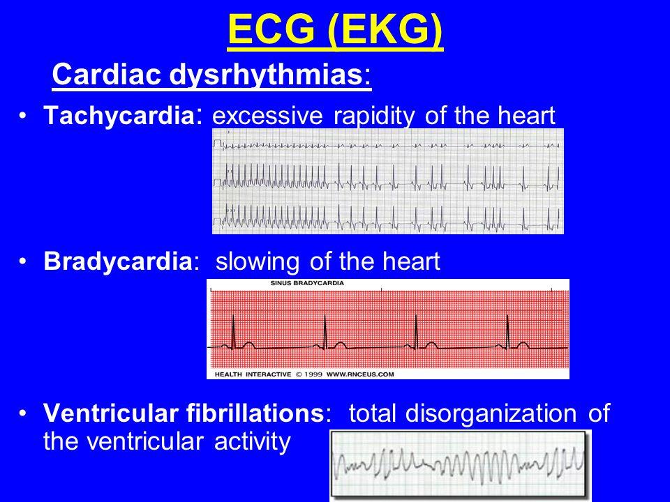 ECG (EKG) Cardiac dysrhythmias: