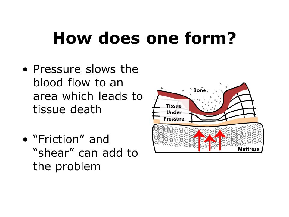 How does one form. Pressure slows the blood flow to an area which leads to tissue death.
