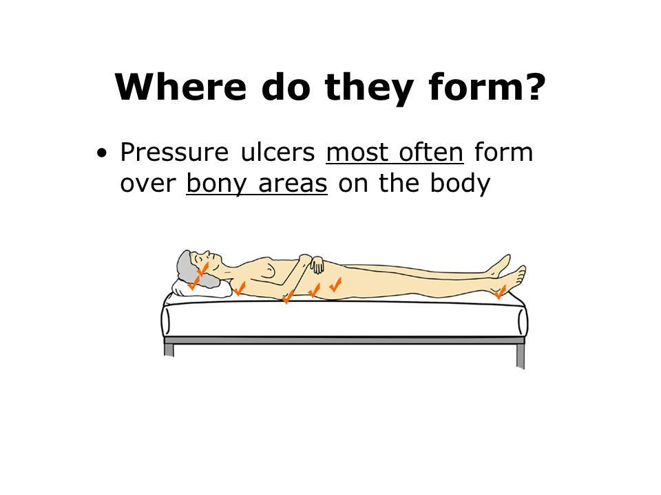 Where do they form Pressure ulcers most often form over bony areas on the body