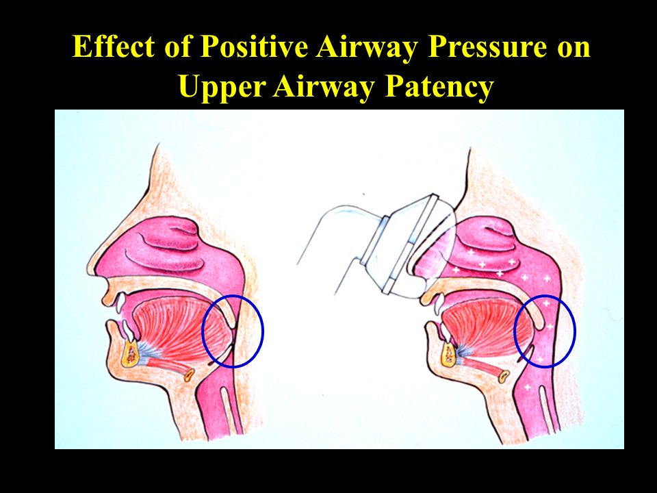 Effect of Positive Airway Pressure on