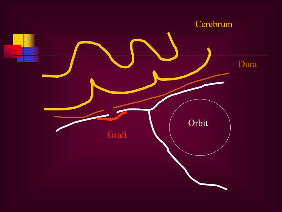 Cerebrum Dura Graft Orbit
