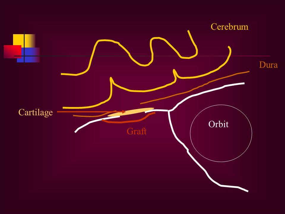 Cerebrum Dura Cartilage Graft Orbit