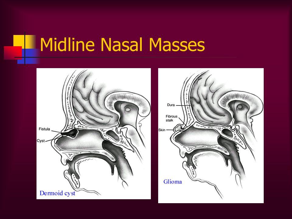 Midline Nasal Masses
