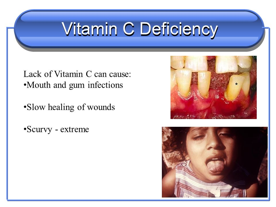 Vitamin B2 Deficiency Lack of Vitamin B2 – Rioflavin