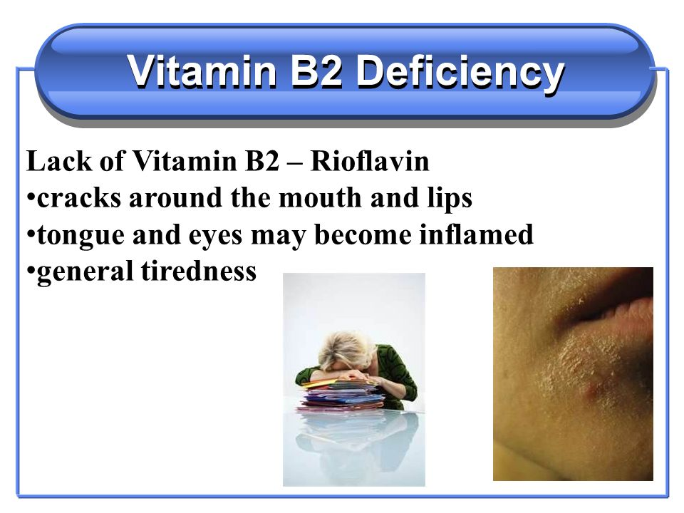 Vitamin B1 - Water Soluble