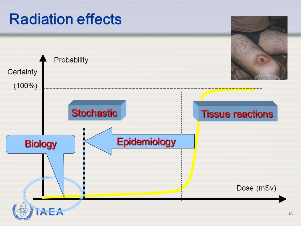 Radiation effects Stochastic Tissue reactions Epidemiology Biology