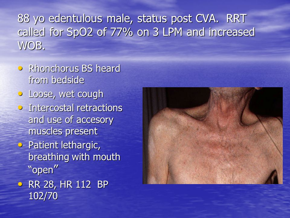 88 yo edentulous male, status post CVA