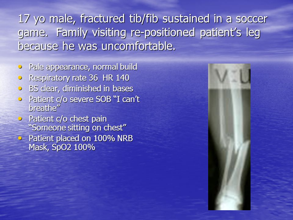 17 yo male, fractured tib/fib sustained in a soccer game