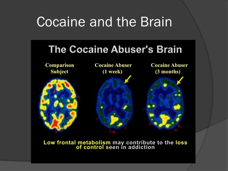 Cocaine and the Brain