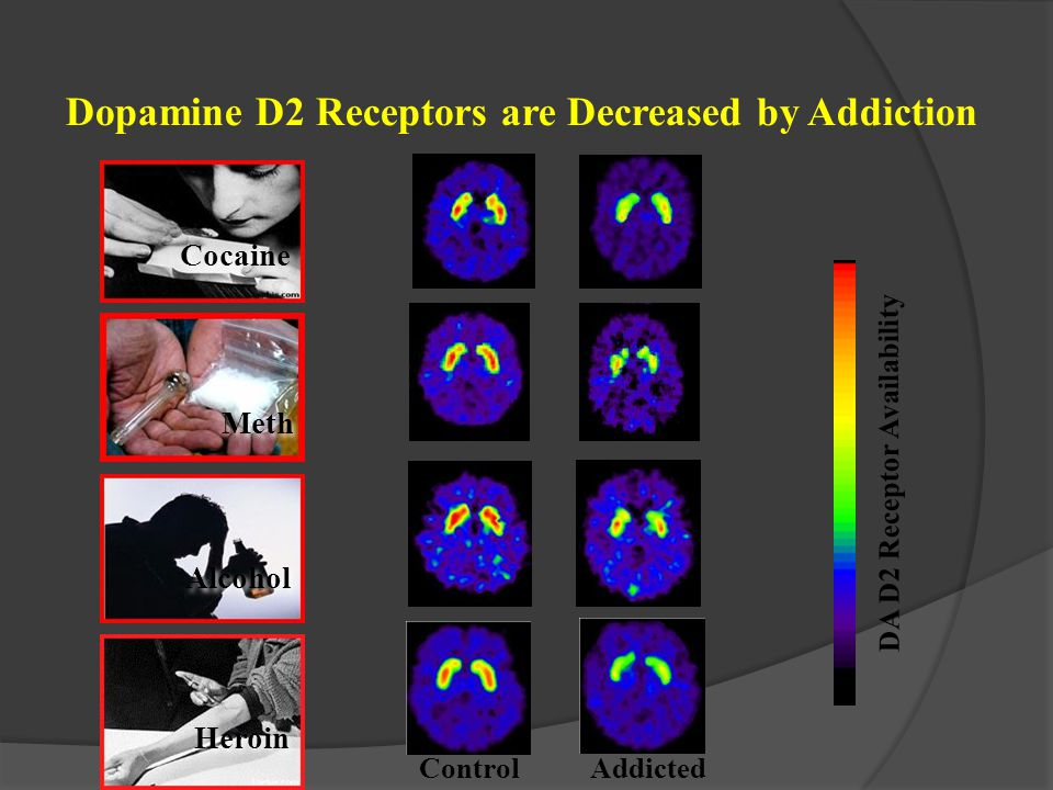 Dopamine D2 Receptors are Decreased by Addiction
