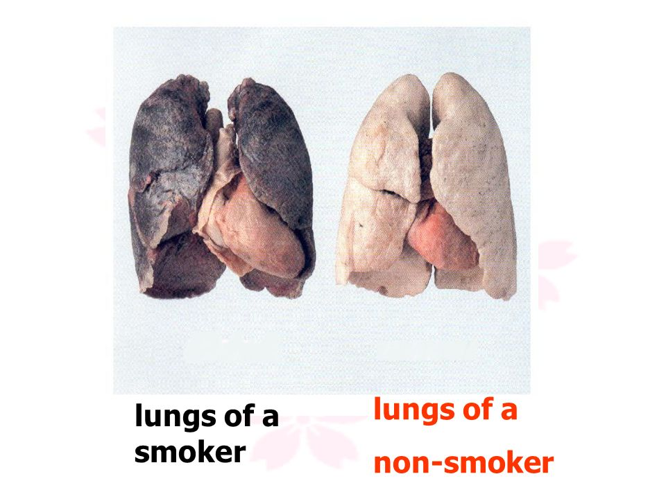 lungs of a non-smoker lungs of a smoker