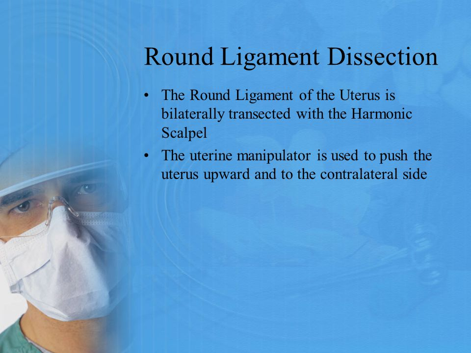 Round Ligament Dissection